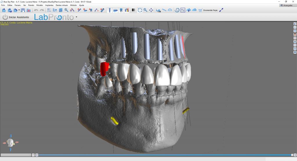 Implantodontia Dental Harmony