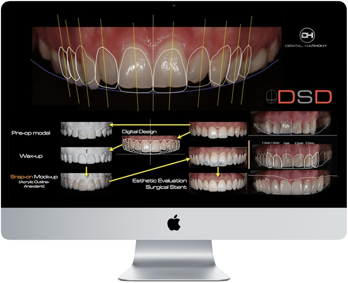 DSD Dental Harmony
